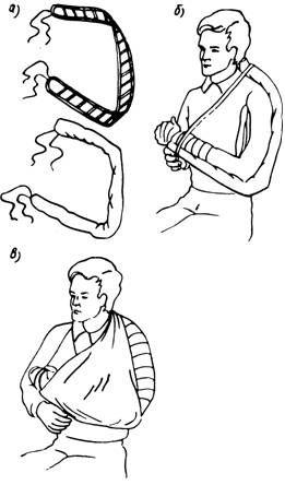 Шина Крамера (а) і етапи накладення шини при пошкодженнях кисті та передпліччя