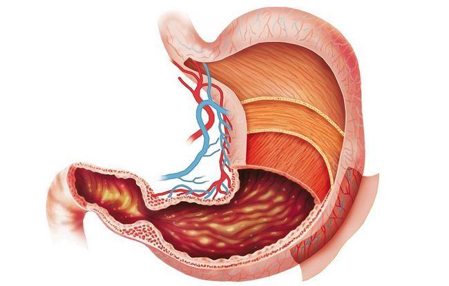 шлунок